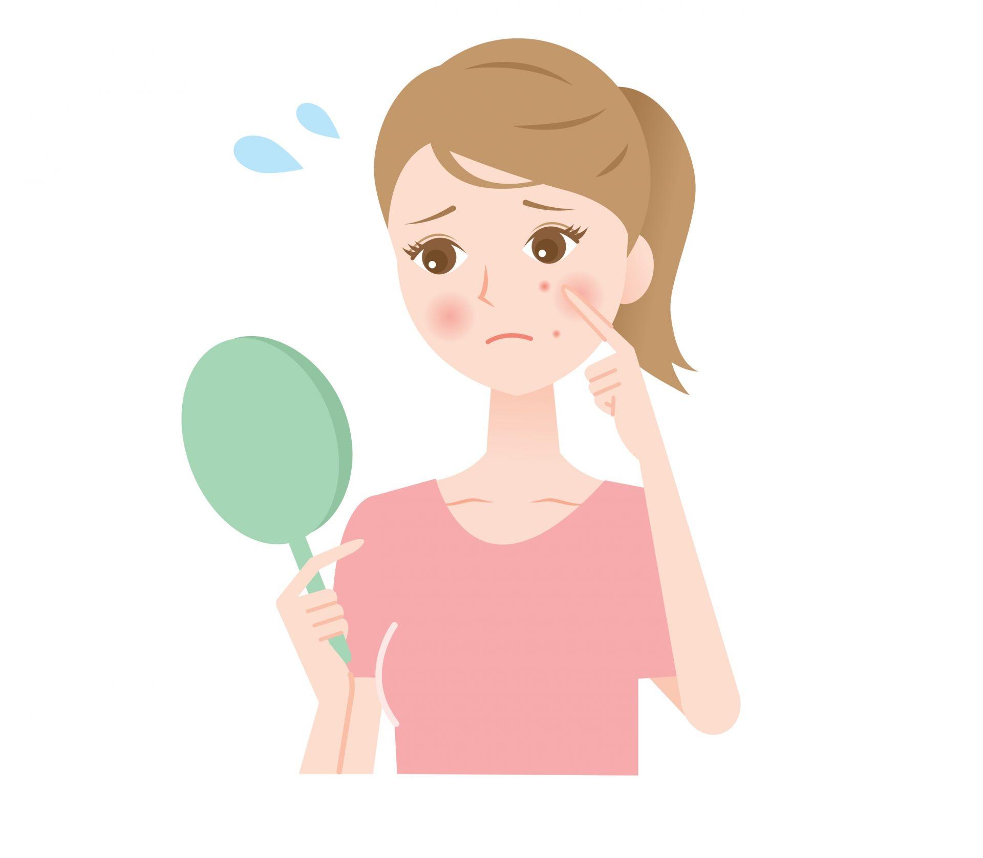 皮脂堵塞毛孔造成的痤瘡